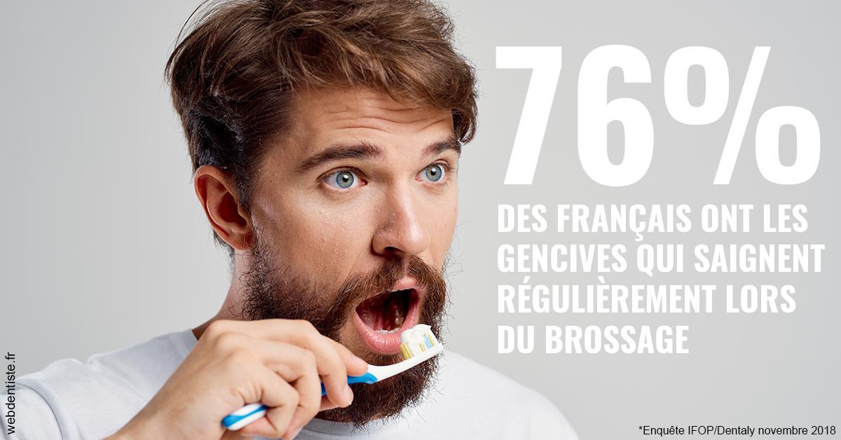 https://dr-nigoghossian-cecile.chirurgiens-dentistes.fr/76% des Français 2