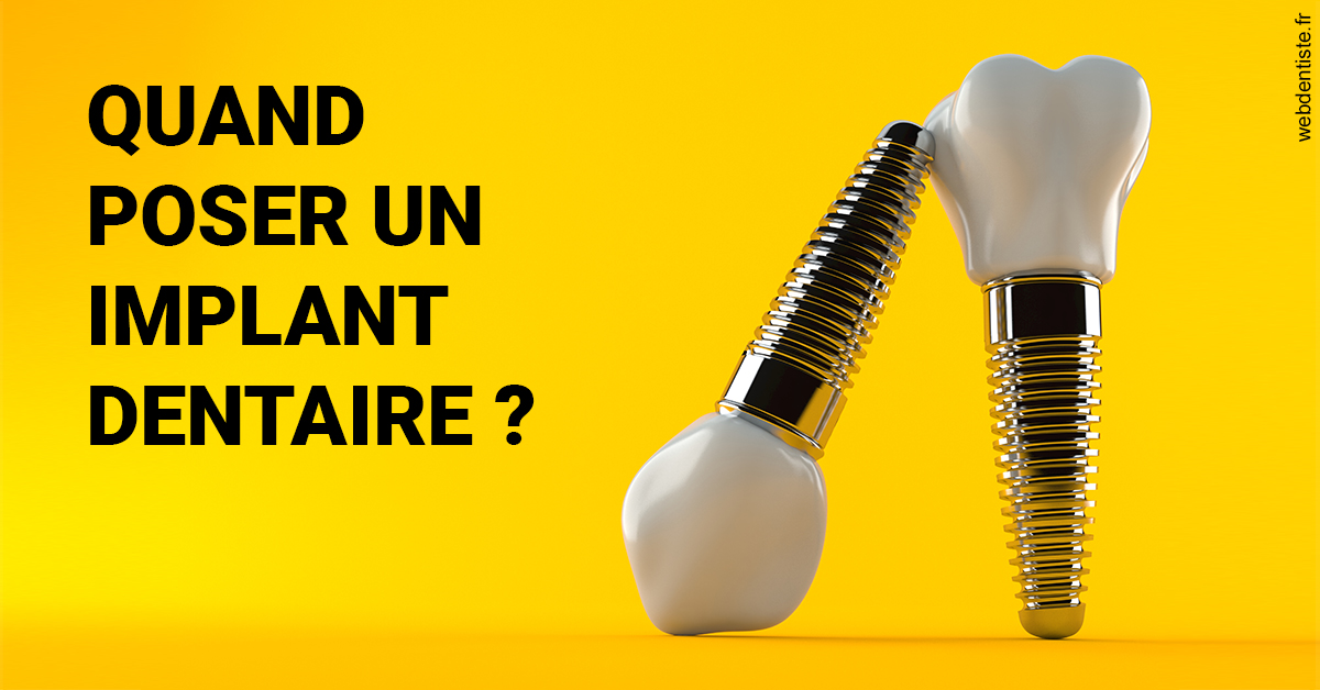 https://dr-nigoghossian-cecile.chirurgiens-dentistes.fr/Les implants 2