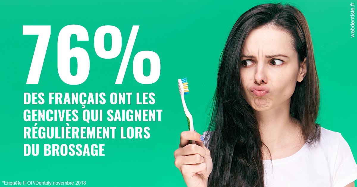 https://dr-nigoghossian-cecile.chirurgiens-dentistes.fr/76% des Français 1