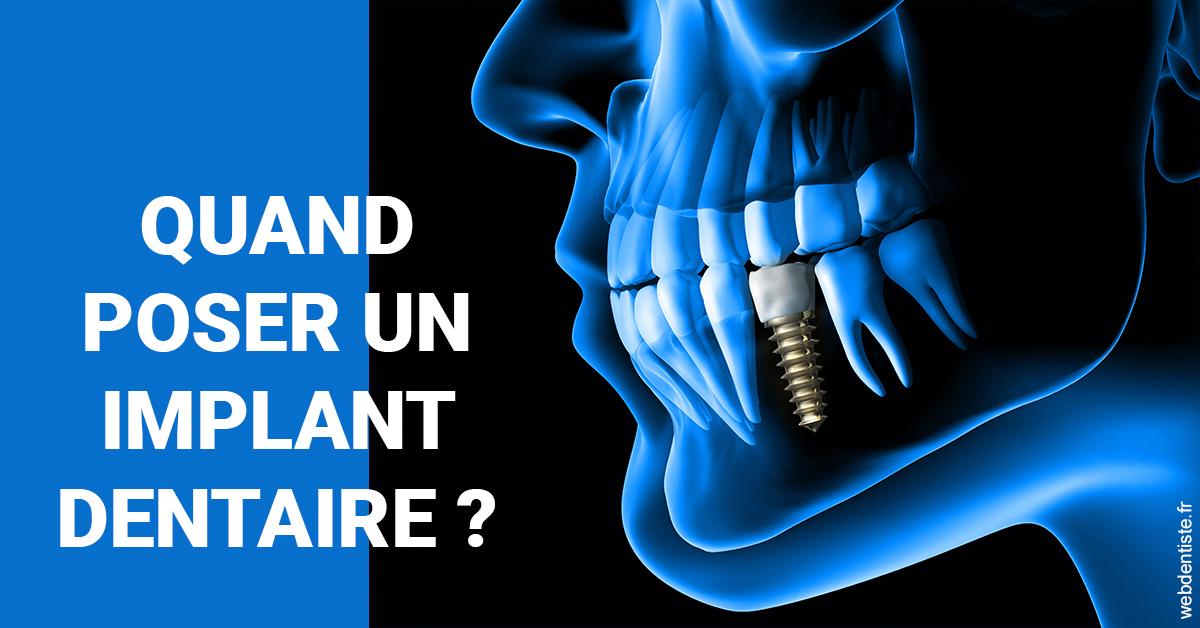 https://dr-nigoghossian-cecile.chirurgiens-dentistes.fr/Les implants 1